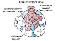Атопическая форма бронхиальной астмы что это