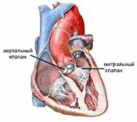 Как производится лечение аортальных пороков сердца
