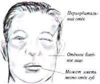 Нефротический синдром — причины, симптомы, диагностика и лечение