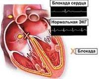 Атриовентрикулярная блокада - причины, симптомы, диагностика и лечение