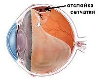 Отслойка задней гиалоидной мембраны лечение