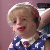 treacher collins syndrome Auggie pullman's facial deformity in the new movie 'wonder' is called treacher collins syndrome here are the facts about what causes it and how it's.
