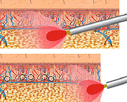 Лечение гипергидроза при помощи лазера