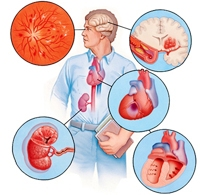 gipertonicheskaya-bolezn-simptomaticheskie-arterialnie-gipertenzii