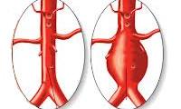 Аневризма аорты сердца лечение
