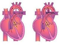 Открытый артериальный проток - причины, симптомы, диагностика и ...
