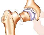 Перелом шейки <i>перелом шейка тазобедренных суставов</i> бедра у пожилых