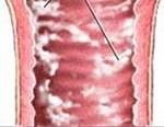 Молочница - причины, симптомы, диагностика и лечение