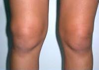 Синовит коленных суставов вывих плечевого сустава свежий номер