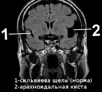 Что такое нейроглиальная киста