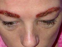 Аллергия на глазах от косметики