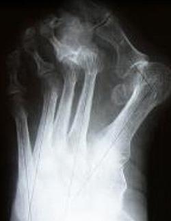 Молоткообразная деформація пальців стопи