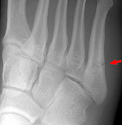 Рентгенограмма при переломе V плюсневой кости