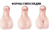 От чего половой член становится кривой