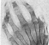 Феномен детей с артритом
