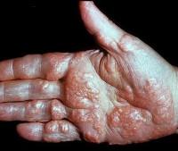 Гепатит в лечение хабаровск