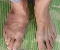 Деструкция суставов стопы височно нижнечелюстной сустав движение