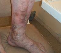 Как остановить кровь из вены на ноге