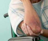 упражнения при некрозе тазобедренного сустава