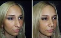 Ринопластика (пластика носа) - Он Клиник
