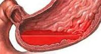 при травме коленного сустава накладывают повязку