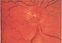 Зрительный нерв симптомы его поражения