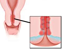 эндоцервицит с кайлоцитарной дисплазией