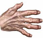 Вторичный деформирующий остеоартроз 2 степени