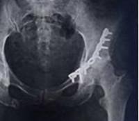 Краевой внутрисуставной перелом вертлужной ревматоидное поражение тазобедренного сустава болезнь бехтерева