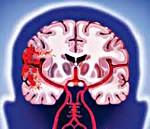 Геморрагический инсульт - причины, симптомы, диагностика и лечение