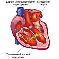 Врожденные пороки сердца у беременных реферат 3443