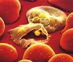 Тромбоцитопатии - причины, симптомы, диагностика и лечение