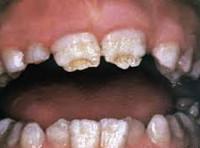 Реферат болезни прорезывания зубов