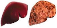 Алкогольный гепатит симптомы и лечение