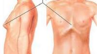 Силиконовые грудные импланты цена