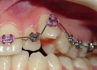 Дистопия зуба это