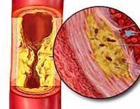 Лечение холестерин бляшки