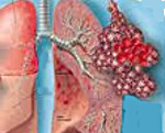 Геморрагическая пневмония микропрепарат