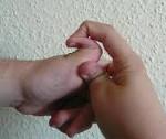 Синдром Элерса - Данлоса