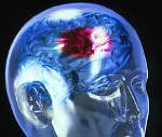 Инсульт - причины, симптомы, диагностика и лечение