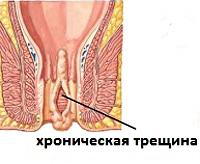 Медицина анальные трещины