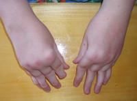 Хронический артрит - причины, симптомы, диагностика и лечение