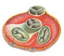 Комбинированный порок сердца: диагностика и лечение сочетанных клапанных дефектов