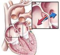 Врожденные пороки сердца - причины, симптомы, диагностика и лечение