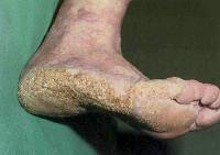 Диффузный кератоз и болезни суставов костно-суставной туберкулез корнев