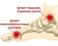 Артрит стопы - причины, симптомы, диагностика и лечение
