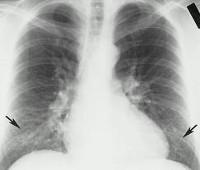 Атипичная пневмония причины симптомы диагностика и лечение Атипичная пневмония