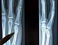Перелом пястной кости - причины, симптомы, диагностика и лечение