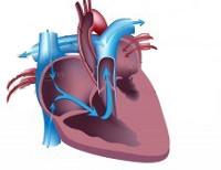 Синдром гипоплазии левых отделов сердца - причины, симптомы, диагностика и лечение
