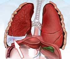 Хрипы при выдохе и кашель у ребенка лечение